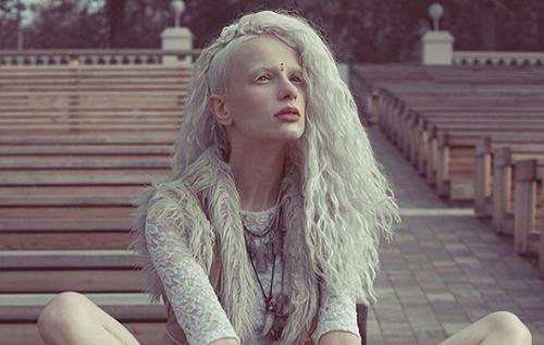 альбинос Алиса Лисс фото